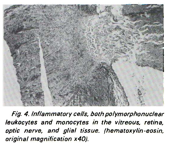 Fig. 4. Inflammatory cells, both polymorphonuclear leukocytes and monocytes in the vitreous, retina, optic nerve, and glial tissue, ihematoxylin-eosin, original magnification x40).