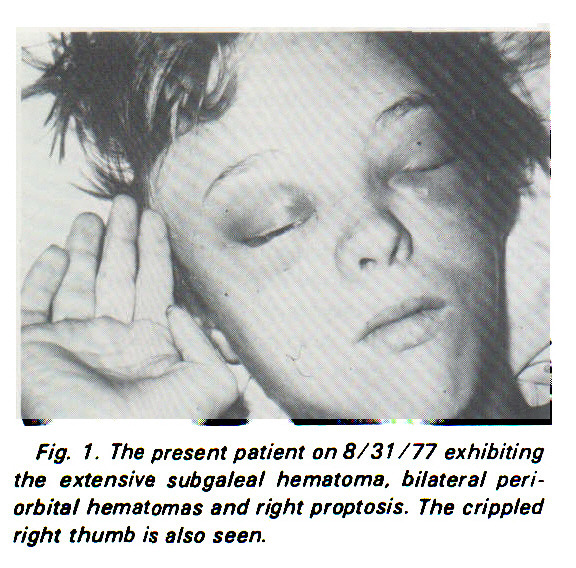 Fig. 1. The present patient on 8/31 / 77 exhibiting the extensive subgaleal hematoma, bilateral periorbital hematomas and right proptosis. The crippled right thumb is also seen.