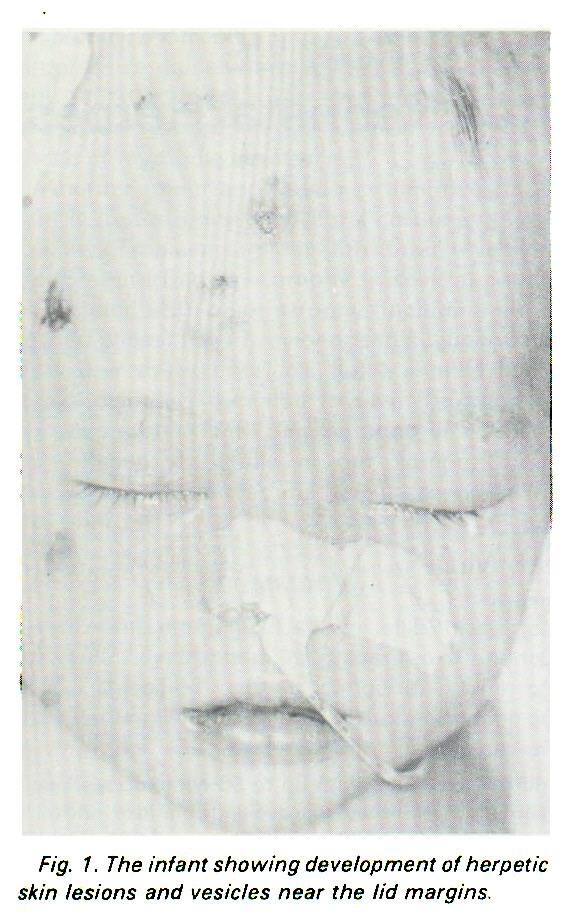 Fig. 1. The infant showing development of herpetic skin lesions and vesicles near the lid margins.