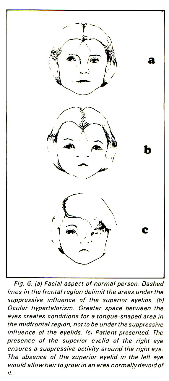 Fig. 6. (a) Facial aspect of normal person. Dashed lines in the frontal region delimit the areas under the suppressive influence of the superior eyelids, (b) Ocular hypertelorism. Greater space between the eyes creates conditions for a tongue-shaped area in the m id fron tal region, not tobe under the suppressive influence of the eyelids, (c) Patient presented. The presence of the superior eyelid of the right eye ensures a suppressive activity around the right eye. The absence of the superior eyelid in the left eye would allow hair to grow in an area normally devoid of it.