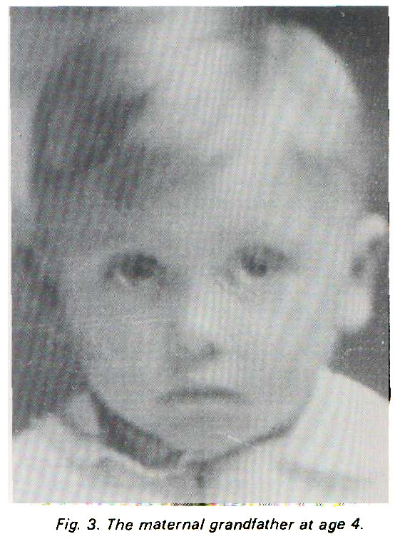 Fig. 3. The maternal grandfather at age 4.