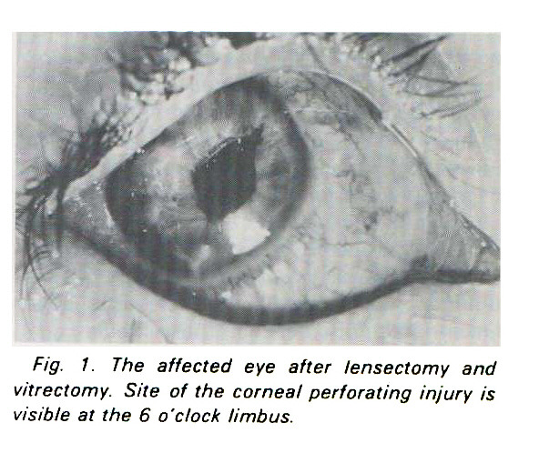 Fig. I. The affected eye after lensectomy and vitrectomy. Site of the corneal perforating injury is visible at the 6 o'clock limbus.