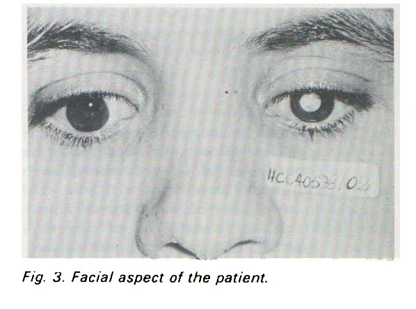 Fig. 3. Facial aspect of the patient.