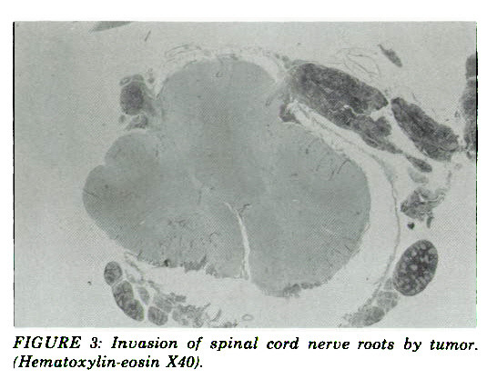 FIGURE 3: Invasion of spinal cord nerve roots by tumor, iffematoxylin-easin X40).