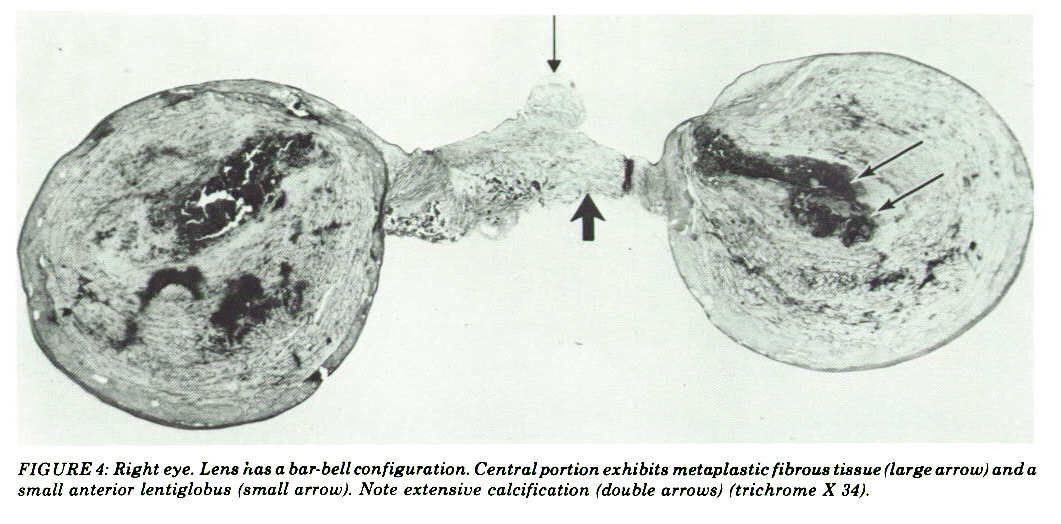 FIGURE 4: Right eye. Lens has a bar-bell configuration. Central portion exhibits metaplastic fibrous tissue (large arrow) anda small anterior lentiglobus (small arrow). Note extensive calcification (double arrows) (trichrome X 34).