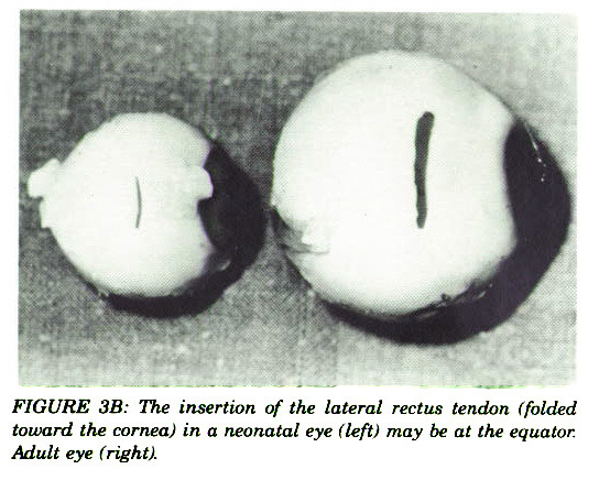 FIGURE 3B: The insertion of the lateral rectus tendon (folded toward the cornea) in a neonatal eye (left) may be at the equator. Adult eye (right).