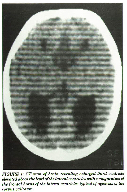 FIGURE 1: CT scan of brain revealing enlarged third ventricle elevated above the level of the lateral ventricles with configuration the frontal horns of the lateral ventricles typical of agenesis of corpus callosum.