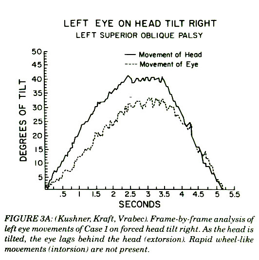 FIGURE 3A: lKushner. Kraft, Vrabec). Frame-by-frante analysis of left eye movements of Case 1 an forced head tilt right. Ax the head is tilted, the eye lags behind the head !extorsion!. Rapid wheel-like movements !intarsiati! are not presen I.