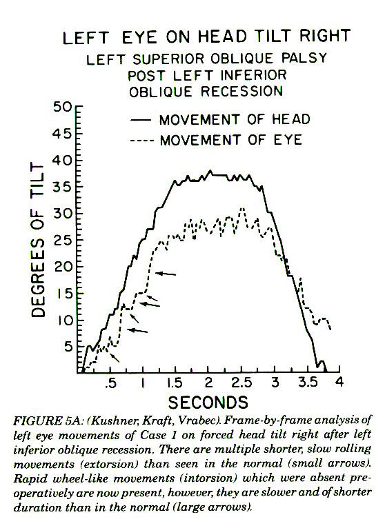 FIGURE SA: (Kushner. Kraft, Vrabecì. Frame-by-frame analysis of left eye movements of Case! on. farced head tilt right after left inferior oblique recession. There are multiple shorter, slow rolling movements (extorsion) than seen in the normal (small arrows). Rapid wheel-like movements /intorsionl which were absent preoperatively are now present, however, they are slower and of shorter duration than in the normal (large arrows).