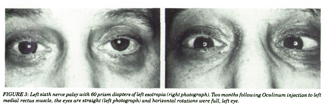 FIGURES: Left sixth nerve palsy with 60 prism diopters of left esotropia t right photograph). Tivo months following Oculinum injection to left medial rectus muscle, the eyes are straight (left photograph) and horizontal rotations were full, left eye.
