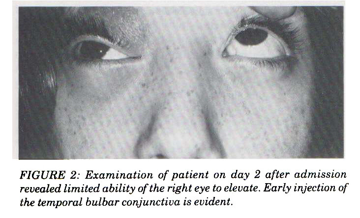 FIGURE 2: Examination of patient on day 2 after admission revealed limited ability of the right eye to elevate. Early injection of the temporal bulbar conjunctiva is evident.