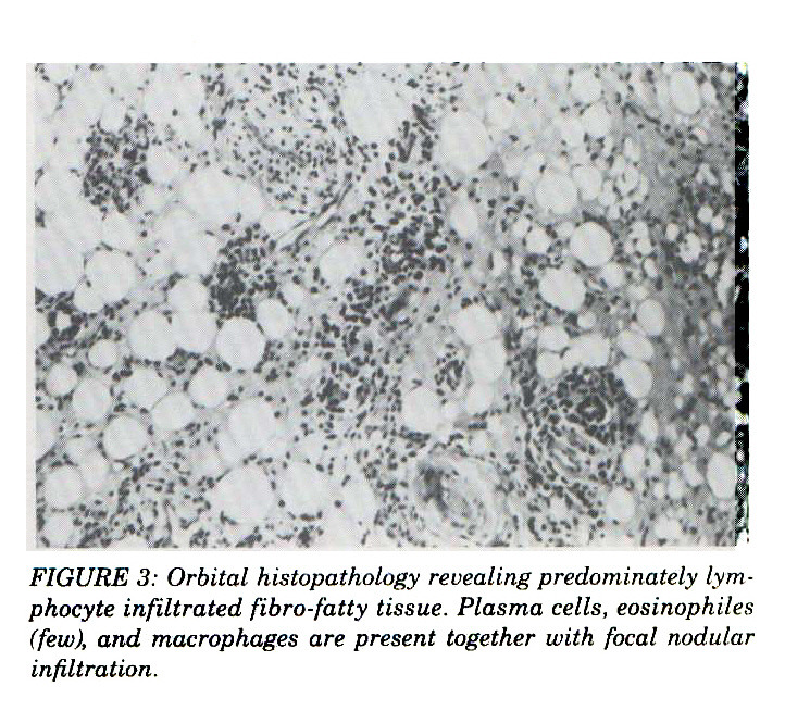 FIGURE 3: Orbital histopathology revealing predominately lym * phocyte infiltrated fibro-fatty tissue. Plasma cells, eosinophiles (few), and macrophages are present together with focal nodular infiltration.