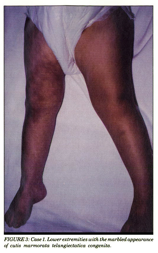 FIGURE 3: Case 1. Lower extremities with the marbled appearance of cutis marmorata telangiectatica congenita.