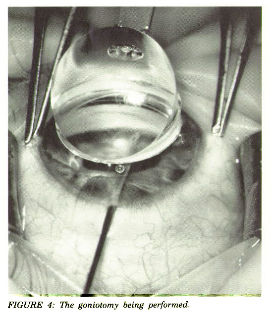FIGURE 4: The goniotomy being performed.