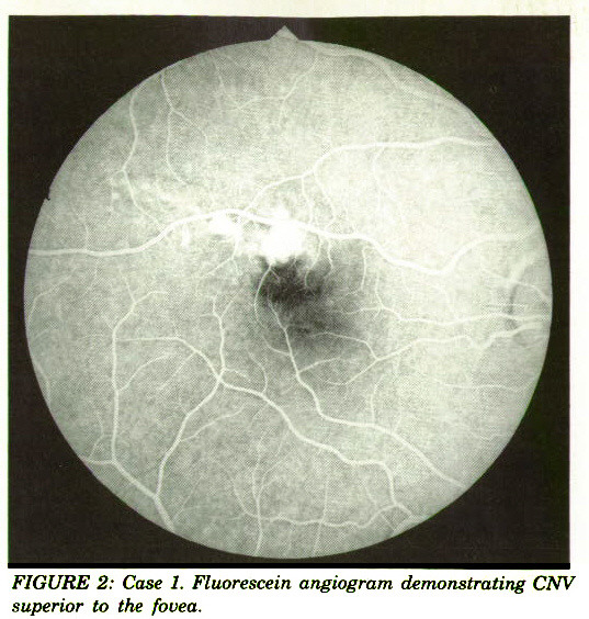 FIGURE 2: Case 1. Fluorescein angiogram demonstrating CNV superior to the fovea.