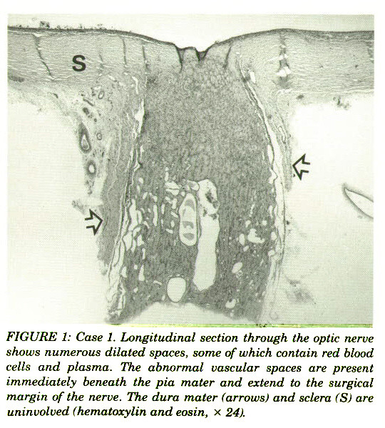 FIGURE 1: Case 1. Longitudinal section through the optic nerve shows numerous dilated spaces, some of which contain red blood cells and plasma. The abnormal vascular spaces are present immediately beneath the pia mater and extend to the surgical margin of the nerve. The dura mater (arrows) and sclera (S) are uninvolved (hematoxylin and eosin, x 24).