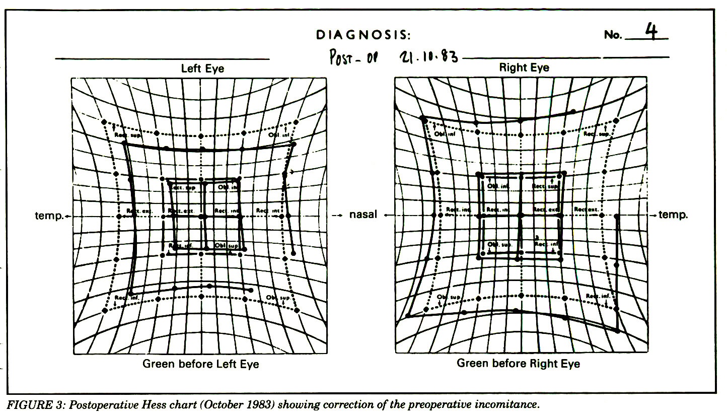 FIGURE 3: Postoperative Hess chart (October 1983) showing correction of the preoperative incomitance.