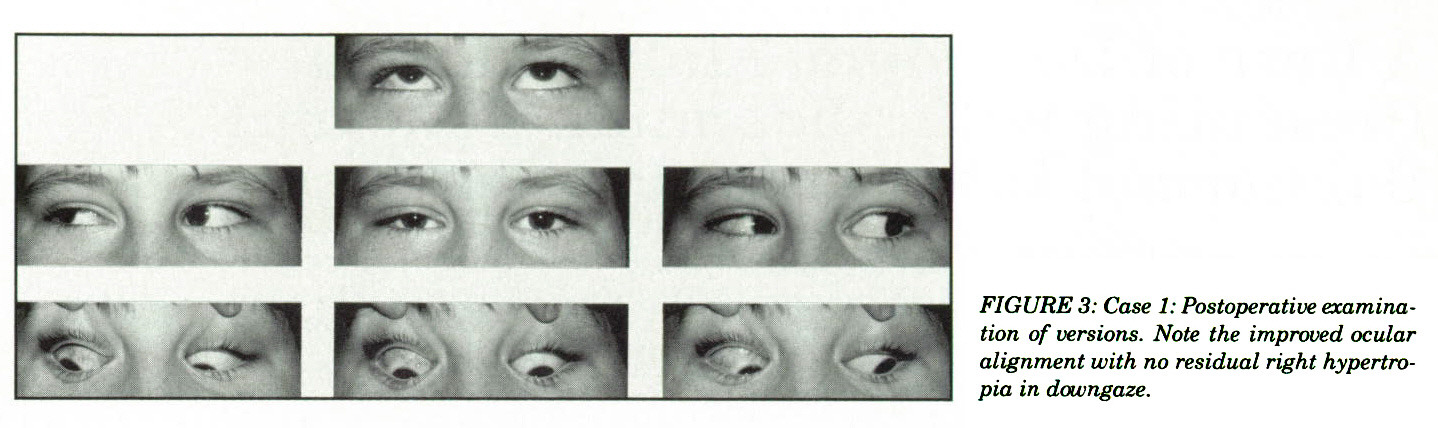 FIGURE 3: Case 1: Postoperative examination of versions. Note the improved ocular alignment with no residual right hypertropia in downgaze.