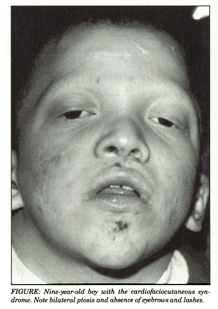 FIGURE: Nine-year-old boy with the cardiofaciocutaneous syndrome. Note bilateral ptosis and absence of eyebrows and lashes.
