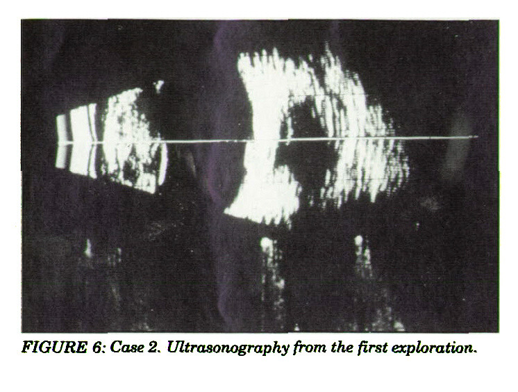 FIGURE 6: Case 2. Ultrasonography from the first exploration.