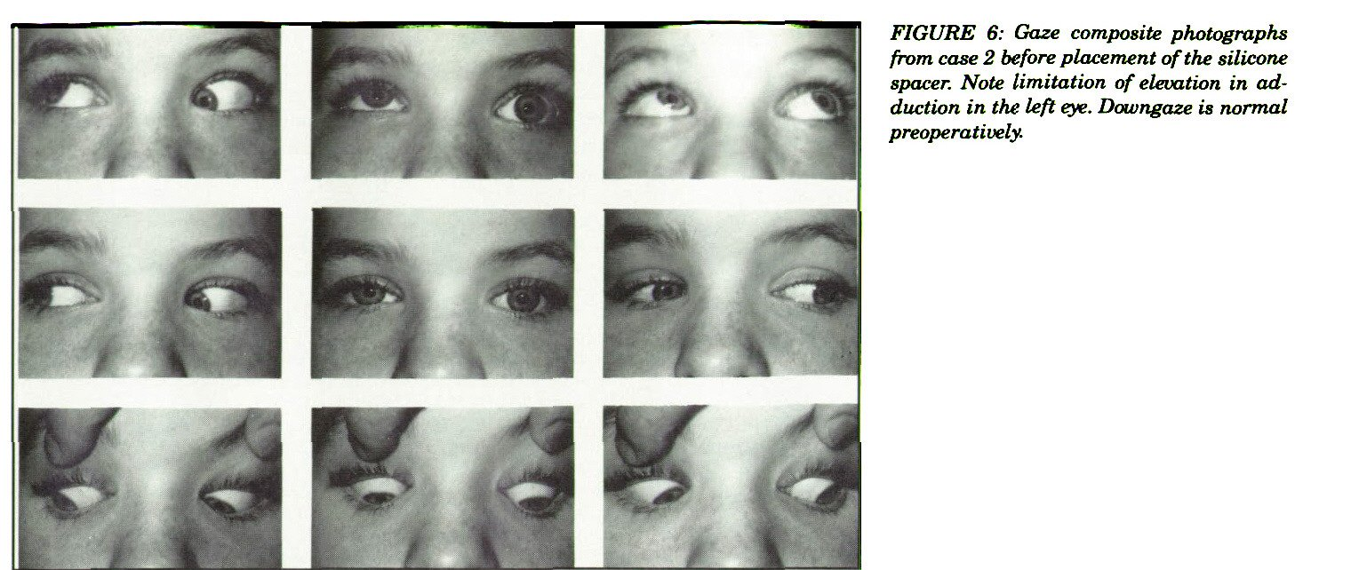 FIGURE 6: Gaze composite photographs from case 2 before placement of the silicone spacer. Note limitation of elevation in adduction in the left eye. Dawngaze is normal preoperatively.