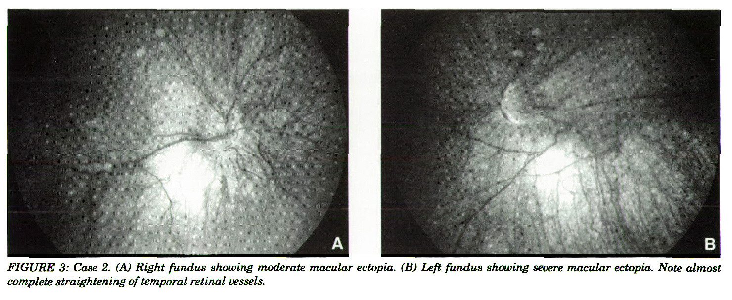 FIGURE 3: Case 2. (A) Bight fundus showing moderate macular ectopia. (B) Left fundas showing severe macular ectopia. Note almost complete straightening of temporal retinal vessels.