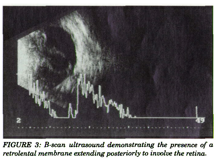 FIGURE 3: B-scan ultrasound demonstrating the presence of a retrolental membrane extending posteriorly to involve the retina.