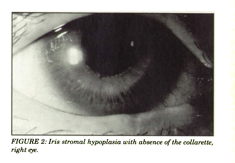 FIGURE 2: Iris stromal hypoplasia with absence of the collarette, right eye.