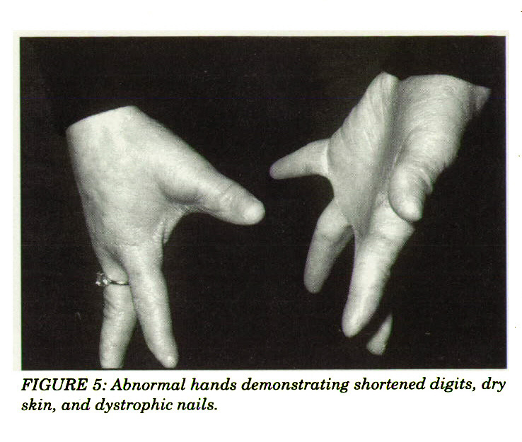 FIGURE 5: Abnormal hands demonstrating shortened digits, dry skin, and dystrophic nails.