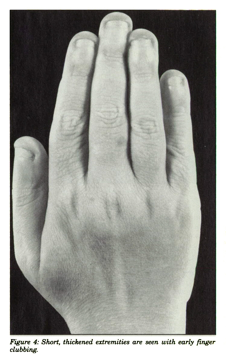 Figure 4: Short, thickened extremities are seen with early finger clubbing.