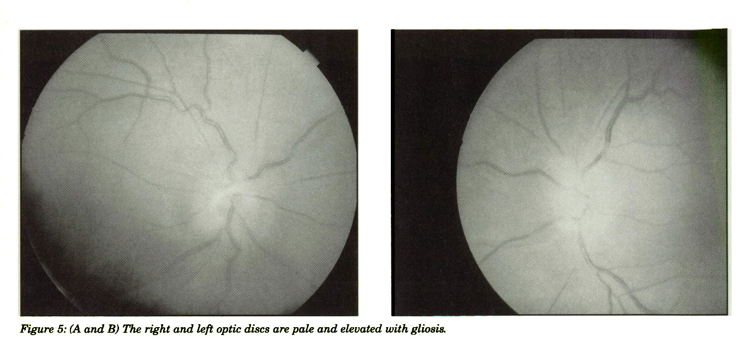 Figure 5: (A and B) The right and left optic discs are pale and elevated with gliosis.