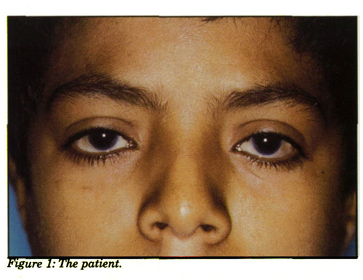 Figure 1: The patient.
