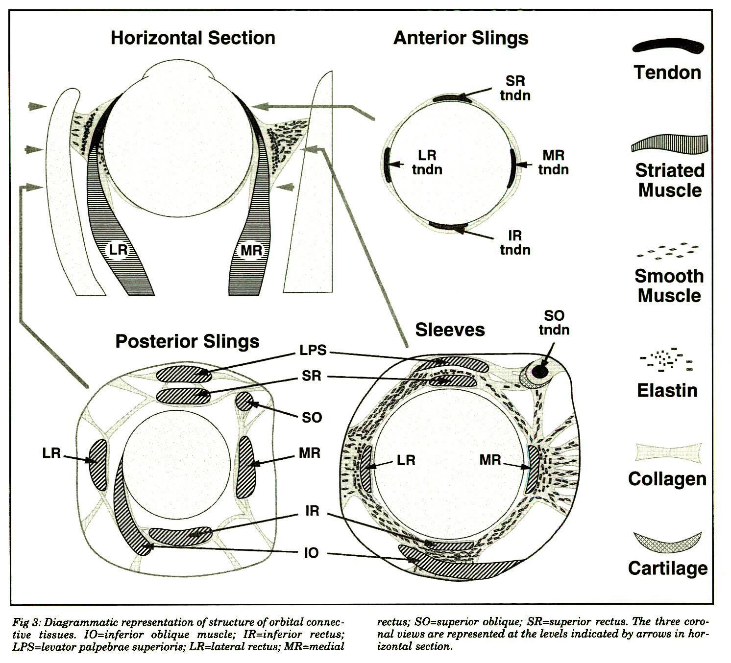 Surgical Implications of the Rectus Extraocular Muscle Pulleys