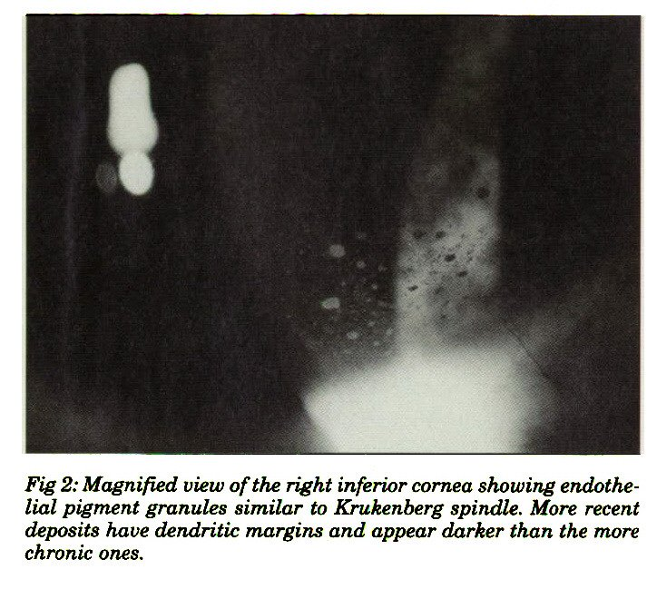 Fig 2: Magnified view of the right inferior cornea showing endotkelial pigment granules similar to Krukenberg spindle. More recent deposits have dendritic margins and appear darker than the more chronic ones.