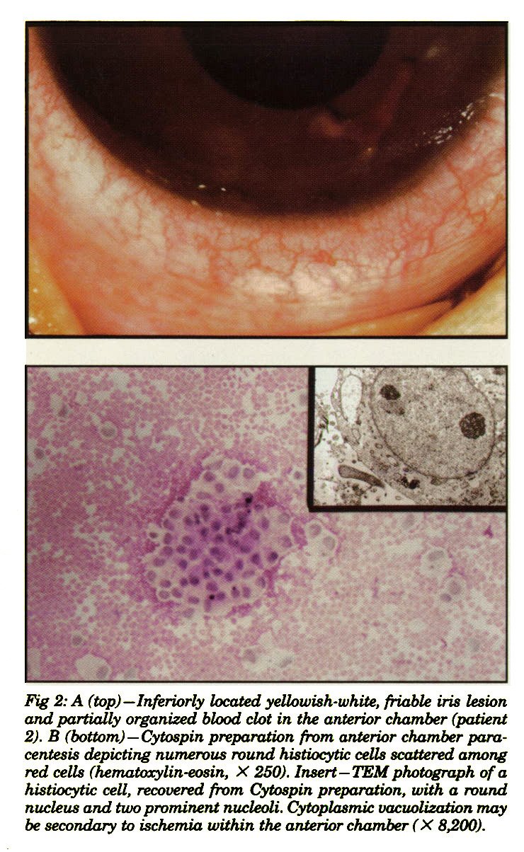 Fig 2: A (top)-Inferiorly located yellowish-white, friable iris lesion and partially organized blood clot in the anterior chamber (patient Z). B (bottom)- Cytospin preparation from anterior chamber paracentesis depicting numerous round histiocytic cells scattered among red cells (hematoxylin-eosin, X 250). Insert- TEM photograph of a histiocytic cell, recovered from Cytospin preparation, with a round nucleus and two prominent nucleoli. Cytoplasmic oacuolizatian may be secondary to ischemia within the anterior chamber (X 8200).