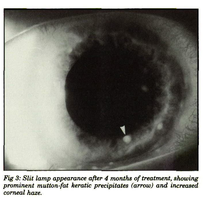 Fig 3: Slit lamp appearance after 4 months of treatment, showing prominent mutton-fat keratic precipitates (arrow) and increased corneal haze.