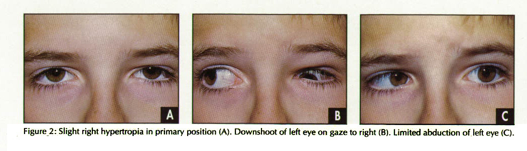 Figure 2: Slight right hypertropia in primary position (A). Downshoot of left eye on gaze to right (B). Limited abduction of left eye (C).