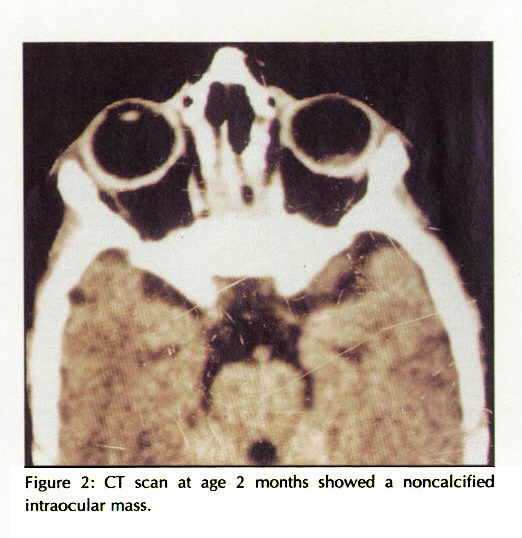 Figure 2: CT scan at age 2 months showed a noncalcified intraocular mass.