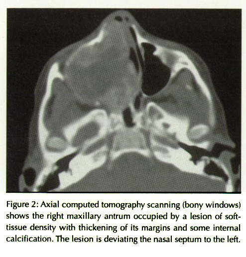 Figure 2: Axial computed tomography scanning (bony windows) shows the right maxillary antrum occupied by a lesion of softtissue density with thickening of its margins and some internal calcification. The lesion is deviating the nasal septum to the left.