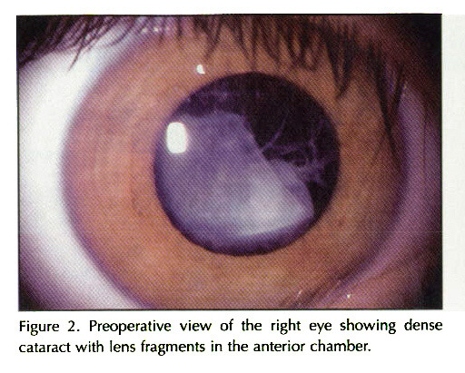 Figure 2. PreoperalJve view of the right eye showing dense cataract with lens fragments in the anterior chamber.