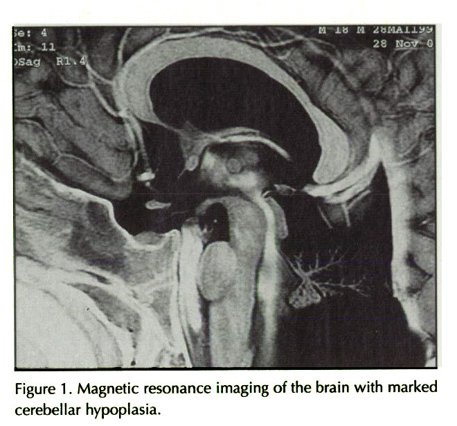 Figure 1 . Magnetic resonance imaging of the brain with marked cerebellar hypoplasia.