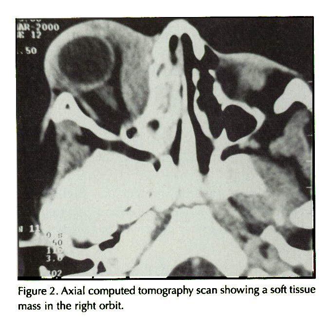 Figure 2. Axial computed tomography scan showing a soft tissue mass in the right orbit.