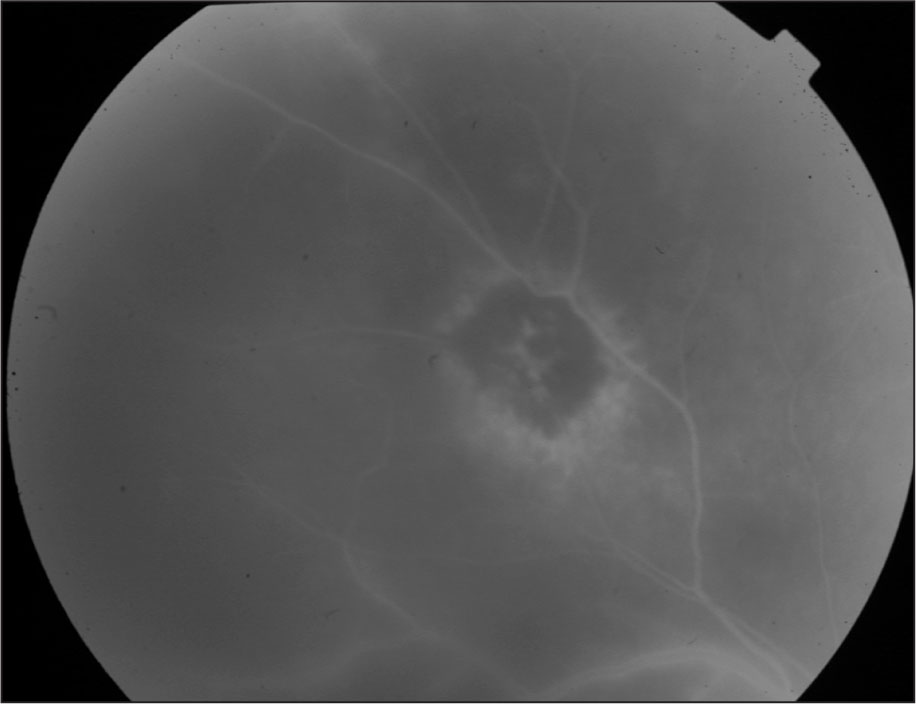 Fluorescein Angiogram of the Right Fundus Showing an Inactive Chorioretinal Scar.