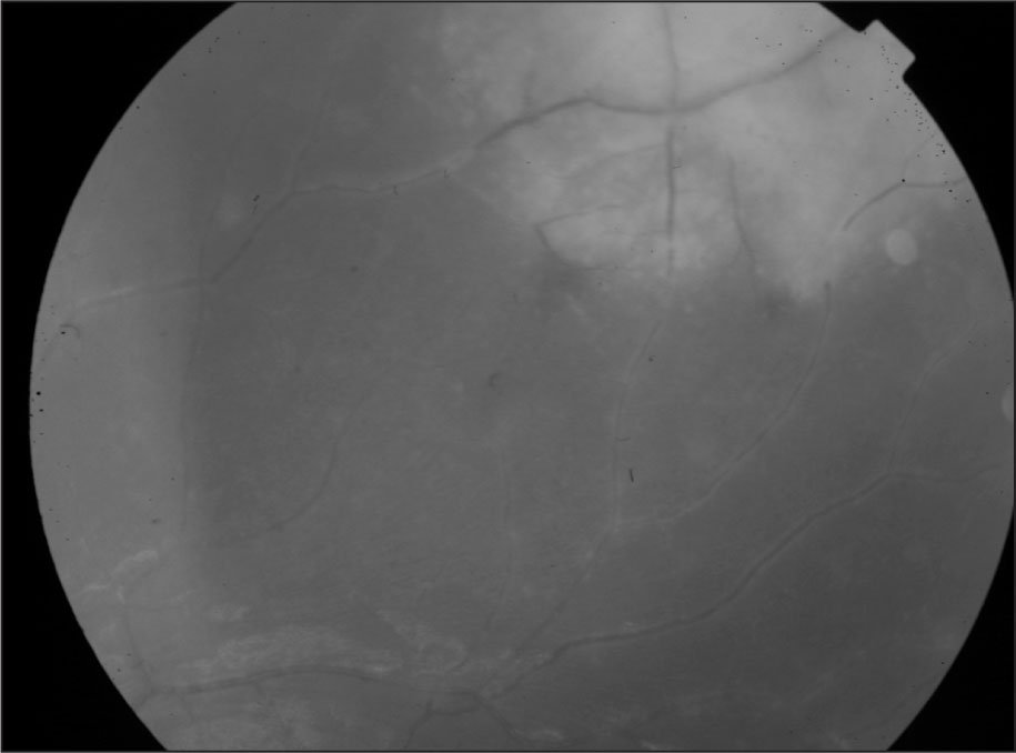 Left Fundus Showing Vascular Sheathing, Widespread Hemorrhages, and Yellow-White Patches in the Periphery, Which Are Characteristic of Acute Retinal Necrosis.