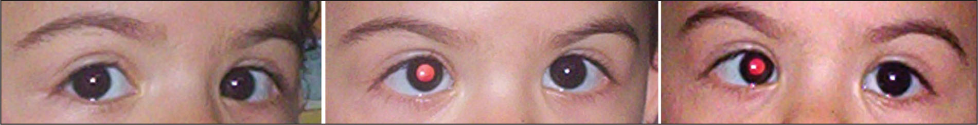 Esotropia in Primary Position, Which Increases in the Field of Action of the Paretic Lateral Rectus Muscle of the Left Eye. Ocular Version Testing Revealed an Inability to Abduct the Left Eye past the Midline. Pupils Were Dilated for Fundus Examination.