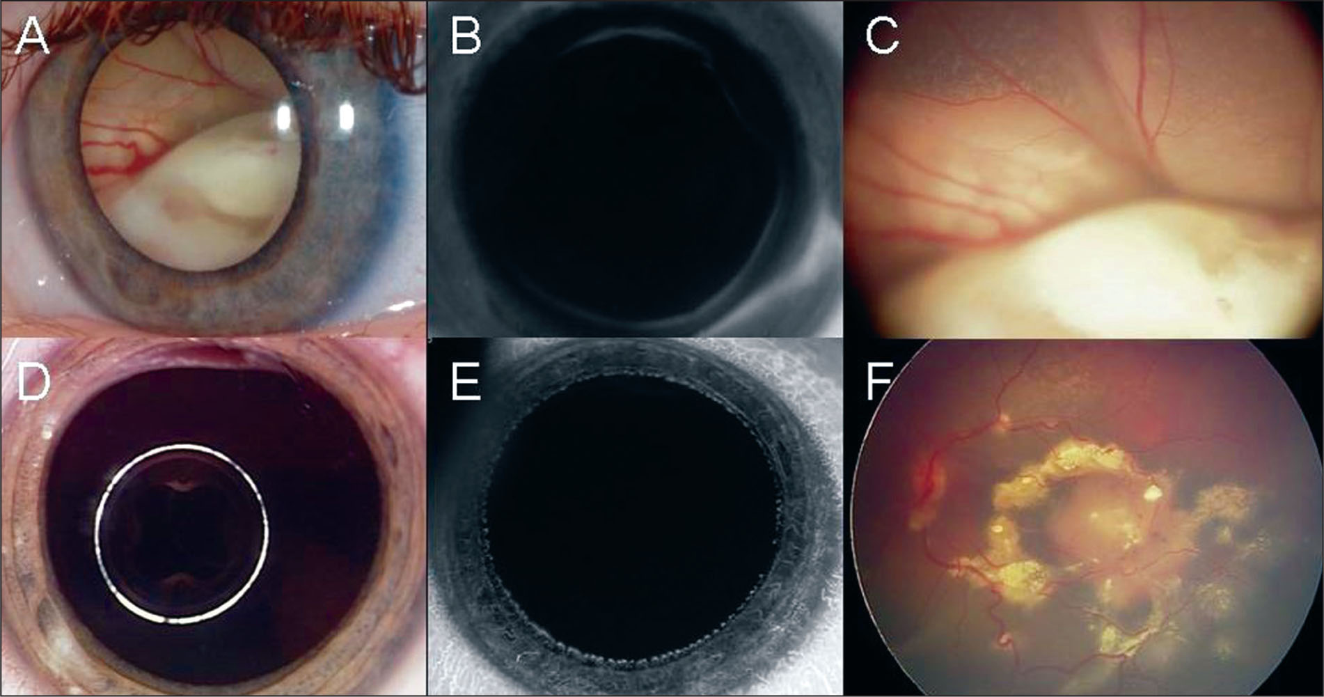 A 30-Month-Old Girl with Small Presumed Retinocytomas in the Right Eye and Advanced Retinoblastoma with Iris Neovascularization in the Left Eye. (A) Anterior Segment Photograph of the Left Eye Showing Massive Tumor and Retinal Detachment Behind the Clear Lens. (B) Iris Fluorescein Angiography Depicting Dye Leakage from Iris Neovascularization. (C) Fundus Image Revealing Group E Retinoblastoma. (D) After Chemoreduction, the Leukocoria Had Disappeared. (E) No Sign of Iris Neovascularization on Iris Fluorescein Angiography. (F) Complete Tumor Regression and Resolution of the Retinal Detachment Is Found.