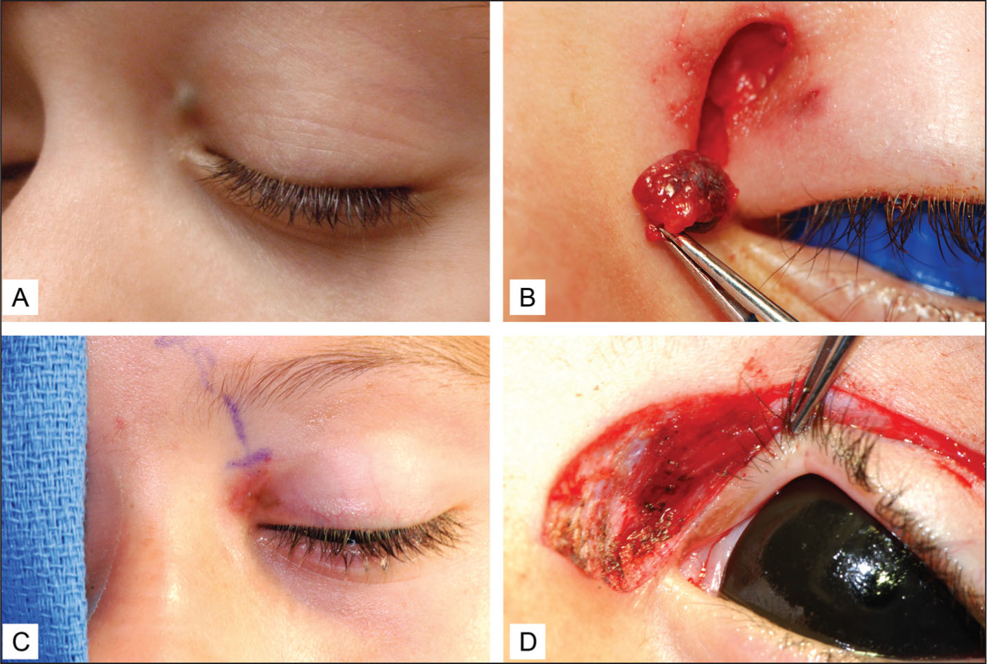 (A) Preoperative Photograph of Initial Pigmented Lesion. (B) Intraoperative Photograph from First Excisional Biopsy. (C) Preoperative Photograph of Non-Discrete Pigmentation Around the Original Biopsy Prior to the Re-Excision. (D) Intraoperative Photograph of the Re-Excision.