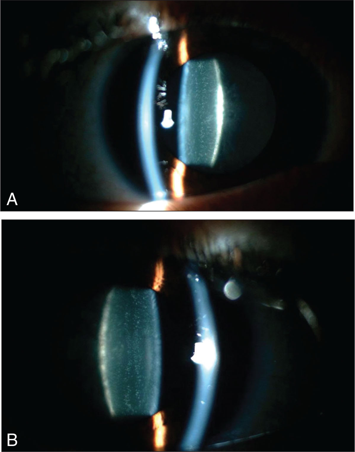 A 10-Year-Old Boy with Poorly Controlled Insulin-Dependent Diabetes Mellitus Complained of Decreasing Vision for Both Distance and near over the Previous Year. He Had No Family History for Juvenile Cataract and Was Taking No Medication Other than Insulin. Best-Corrected Visual Acuity Was 20/60 in Each Eye. Ophthalmic Examination Was Significant Bilaterally for Fine Punctate Opacities Throughout the Lens and Posterior Subcapsular Cataract. Both the Right (A) and Left (B) Eyes Are Shown.