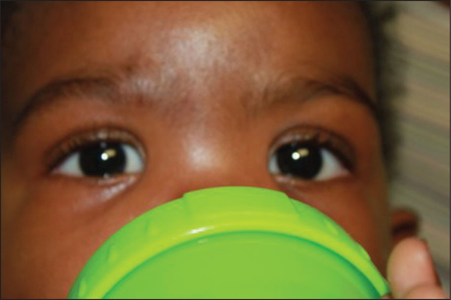 The Ptosis Improved when the Patient Drank from His Bottle.