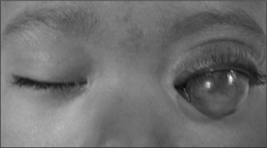 Initial Aspect of a Patient with Congenital Anterior Staphyloma.